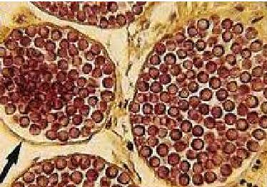 dermocystidium